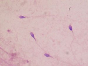 spermatozoides en mouvement